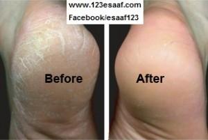 أسباب تشقق القدمين وعلاجها 21-300x201.jpg